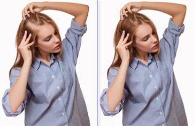 До и после пересадки волос девушке на лоб