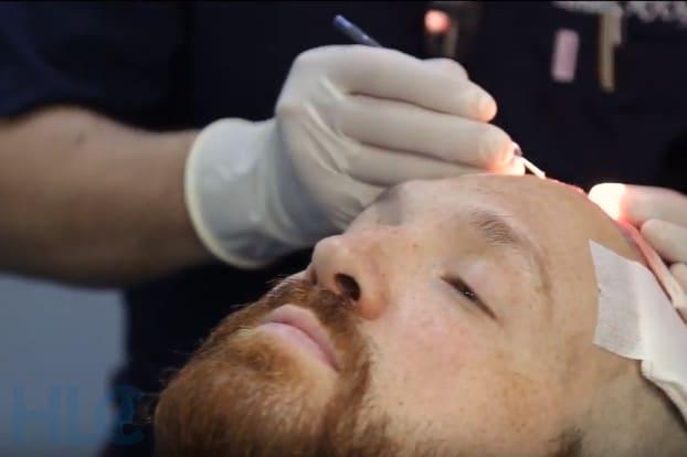Пересадка волос, отзыв пациента