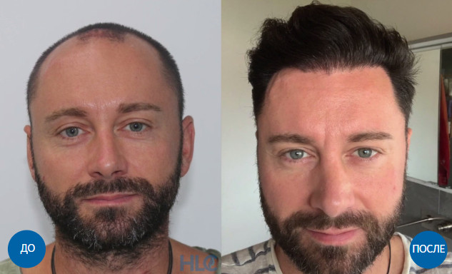Результат пересадки 4000 графтов волос мужчине с затылка на залысины