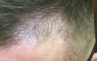Спустя три месяца после трансплантации волос - вид сбоку