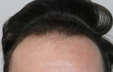 До пересадки волос, редеющая передняя линия 2