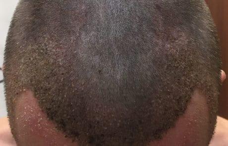 8 дней после пересадки волос