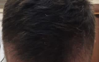 Спустя три месяца после трансплантации волос - вид сверху