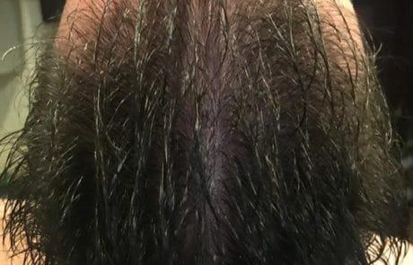 Вид сверху после трансплантации волос