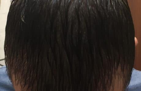 Спустя 2 месяца после пересадки, вид с мокрыми волосами