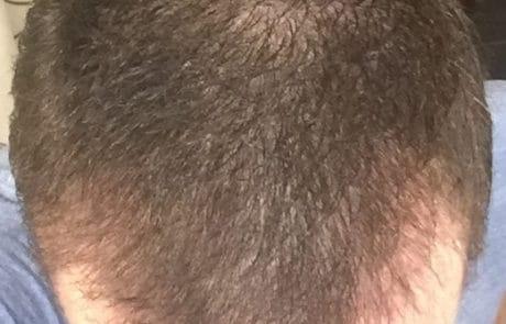 Спустя 2 месяца после пересадки, вид сверху