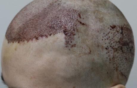 После операции, незначительные кровопотёки