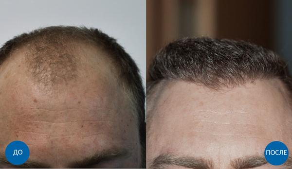 До и спустя 7 месяцев после пересадки 3200 графтов волос мужчине на голову с затылка