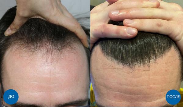 Результат до и после пересадки волос мужчине
