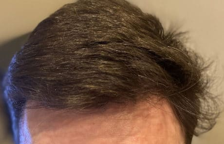 Передняя линия спустя 1 год после пересадки волос мужчине
