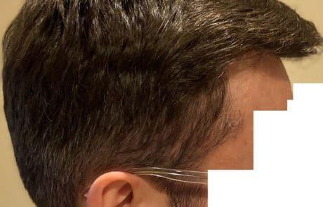 Передняя линия спустя 1 год после пересадки волос - Вид справа