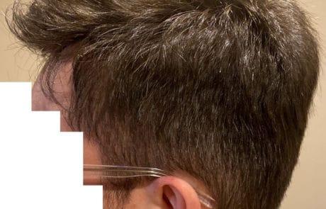 Передняя линия спустя 1 год после пересадки волос - Вид слева