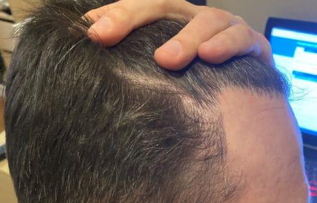 Густота передней линии, вид сбоку. Спустя 1 год после трансплантации волос