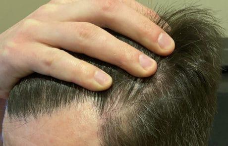 Густота передней линии, вид слева. Спустя 1 год после трансплантации волос