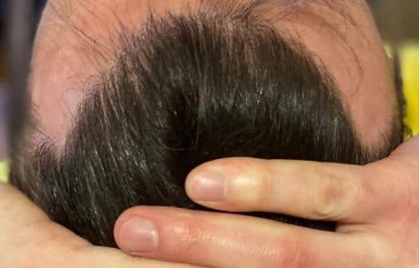 Густота передней линии, вид сверху. Спустя 1 год после трансплантации волос