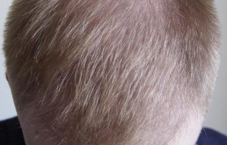 Чуть больше 3 месяцев после пересадки волос