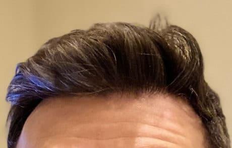 Спустя 10 месяцев - Густота роста волос на передней линии