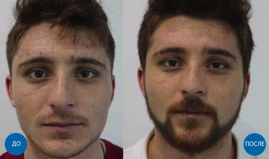 Результат до и после лечения неравномерного роста бороды у парня
