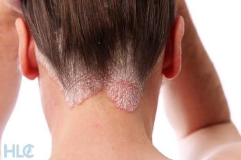 псориаз и выпадение волос какая взаимосвязь