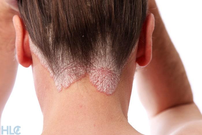 Псориаз волосистой части головы и выпадение волос