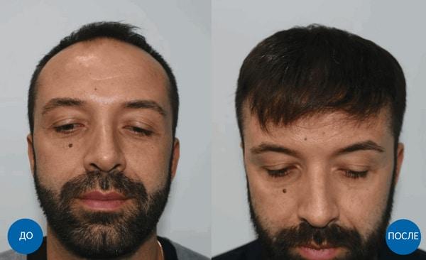 Фото до и после пересадки волос мужчине в Турции бесшовным методом FUE - 3810 графтов, спустя 1 год