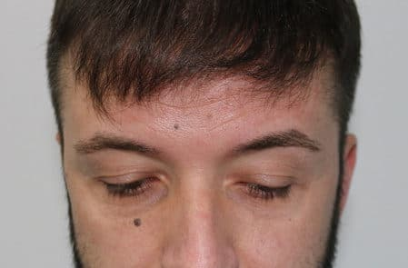 Через 12 месяцев после пересадки волос мужчине