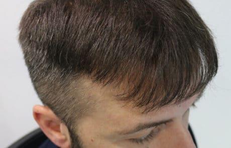 Прекрасная передняя линия волос спустя 1 года