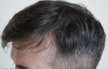 Через 12 месяцев после пересадки волос методом FUE