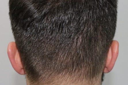 На донорской области никаких следов извлечения волос, спустя 1 года
