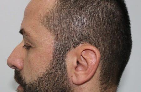 Вид сбоку, до пересадки волос мужчине