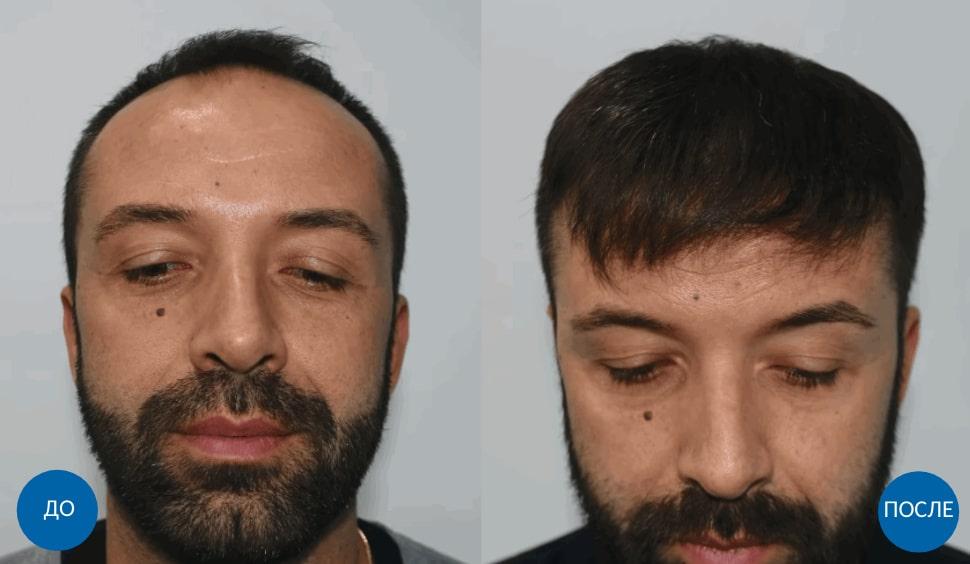 Результат пересадки 3810 графтов волос мужчине с затылка на залысины - фб