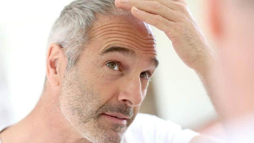 Стадии выпадения волос у мужчин