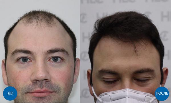 Пересадка 4300 графтов мужчине - Спустя 8 месяцев