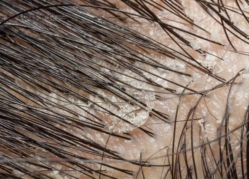 себорейная алопеция в волосах на голове