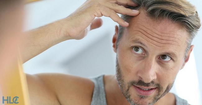 что такое выпадение волос (алопеция)?