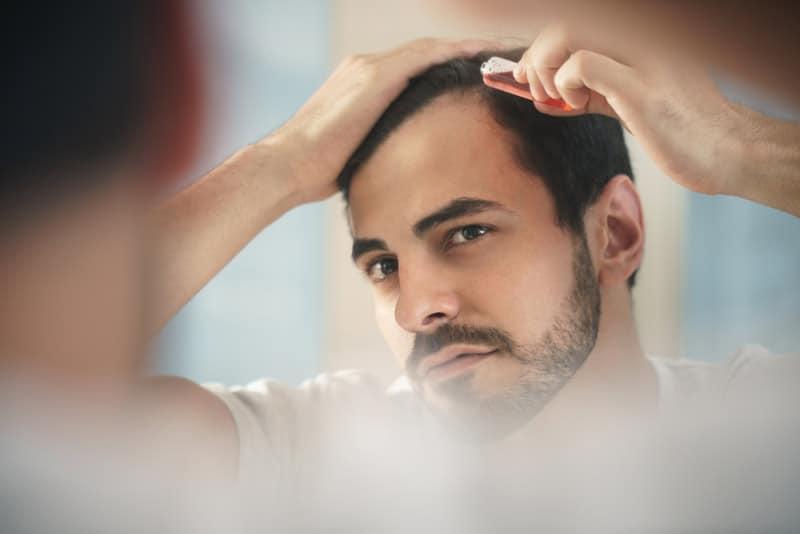 лечение выпадения волос на висках у мужчин