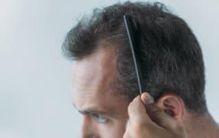 причины и лечение выпадения волос на висках у мужчин и женщин