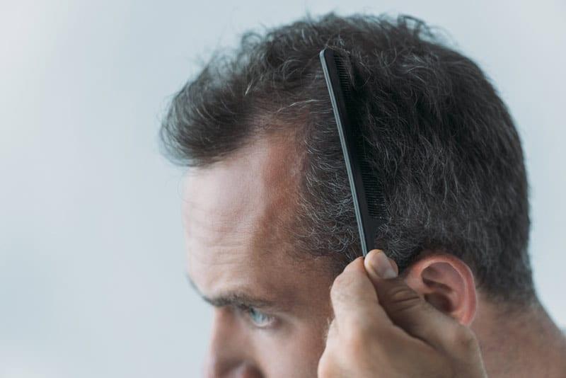Незаметное облысение - нормальное явления для мужчин в зрелом возрасте