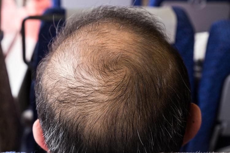 Поредение волос на макушке у мужчины