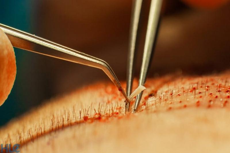 неправильный выбор клиники грозит осложнениями после пересадки волос
