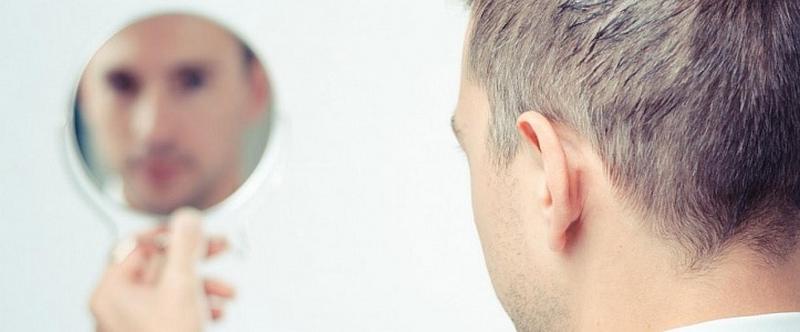 пересадка волос подходит для всех возрастов