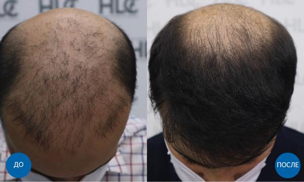 Результат до и после пересадки 3700 графтов волос мужчине с затылка и бороды на переднюю линию роста волос
