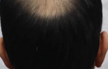 Густота роста волос на затылке не только не стала хуже, но и даже улучшилась.