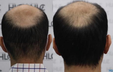 Затылок до и после операции. Заметно повышение густоты роста волос.