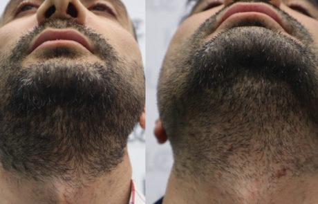 Разница в густоте роста бороды. До и после трансплнтации волос.