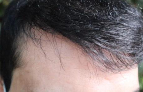 Спустя 12 месяцев, густота передней линии волос