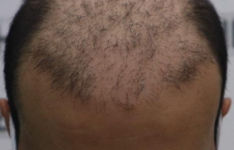 До пересадки волос. Сильное поредение фронтальной линии волос. Вид спереди.