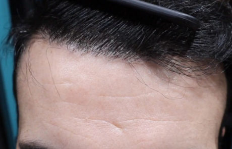 Прекрасная густота роста волос на лбу