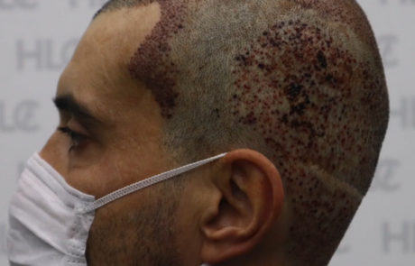 Планирование второй процедуры пересадки волос на темя мужчине. Вид слева