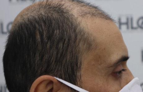 До пересадки волос. Сильное поредение фронтальной линии волос. Вид справа.